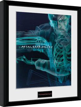 Metal Gear Solid V - X-Ray Poster encadré en verre