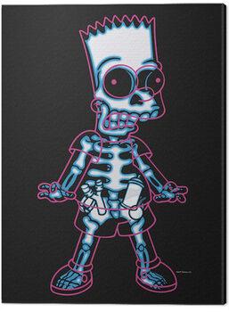 Tela The Simpsons - X-Ray Bart